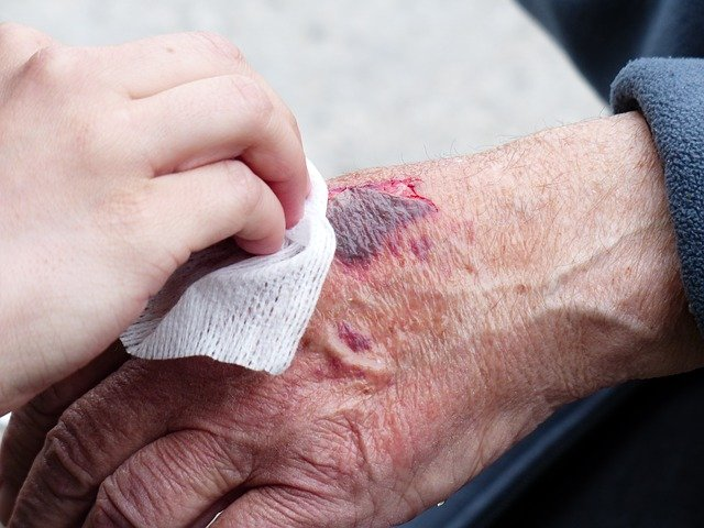 poranění ruky